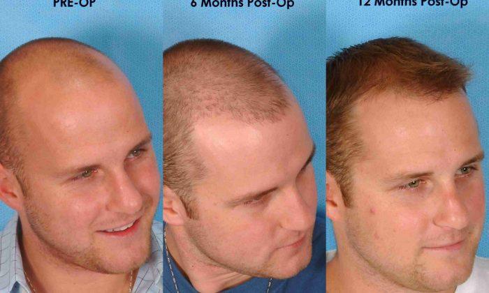 Saç Ekimi Nedir? 2016 Saç Ektirme Fiyatları