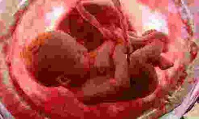 Her Yıl 100 Bin Bebek Anne Karnında Ölüyor!
