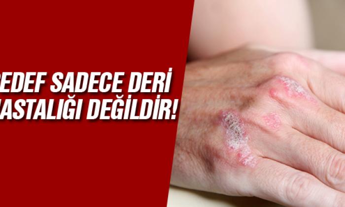 Sedef sadece deri hastalığı değildir!