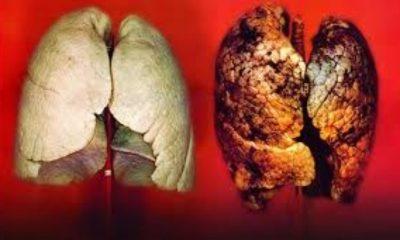 Sigarayı bıraktıktan sonra ne yapılmalı?